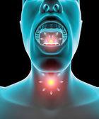 Sore throat inflammation, pain, redness — Stock Photo