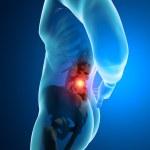 Man backache pain x-ray skeleton — Stock Photo #39180159