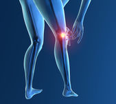Inflammation pain knee — Stock Photo