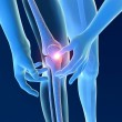 Stock Photo: Inflammation pain knee