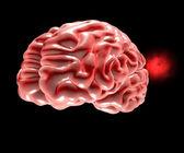Zerebrale aneurysmen, gehirn-kopf — Stockfoto