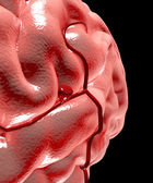Cerebral aneurysm, brain head — Stock Photo