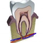Постер, плакат: Tooth structure
