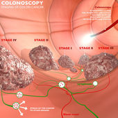 Colonoscopy digestive system — Stock Photo