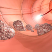 Colonoscopy digestive system — Stock Photo