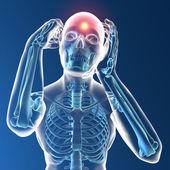 Raio-x humanos com dor de cabeça — Fotografia Stock