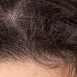 Stock Photo: Hair of head