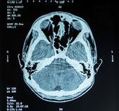 X-ray — Stock Photo