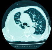 X-ray,lung — Stock Photo