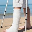 Man with leg plaster at a beach — Stock Photo