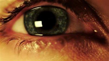 Oeil humain fatigué — Vidéo