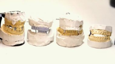 Dental technician workplace. Casts of a jaws. — Stock Video
