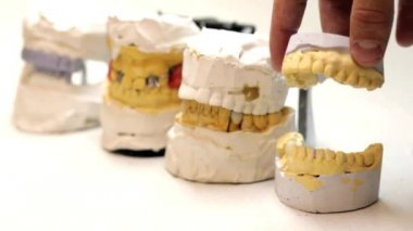 Dental technician workplace. Cast of a jaws. — Stock Video