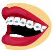 Stock Photo: Vector braces
