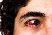Eye injury — Stock Photo