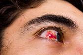 球结膜下出血 — 图库照片