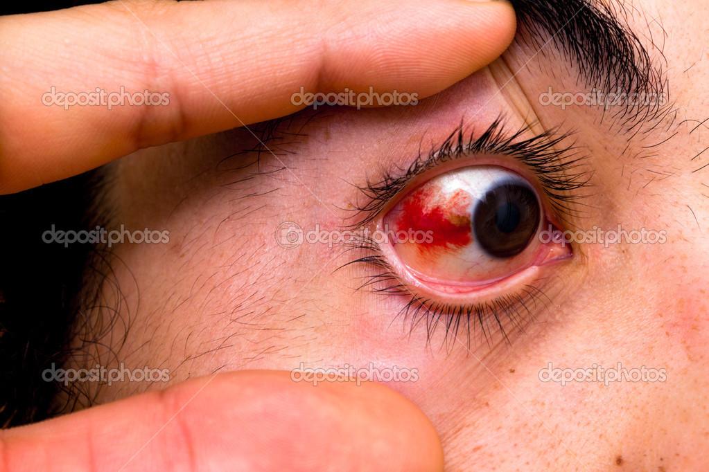 Как сделать так чтобы лопнул сосуд в глазу