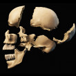 Human skull disassembled on parts. — Stock Photo