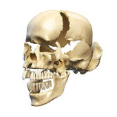 Human skull exploded on parts — Stock Photo