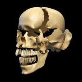 Human skull with parts exploded. — Stock Photo