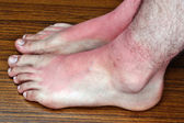Sunburn on the feet — Stock Photo