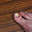 Swollen ingrown toe — Stock Photo