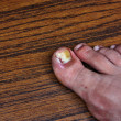 图库照片: Swollen ingrown toe