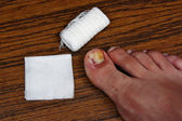 Treatment after the removal of ingrown toenail — Stockfoto