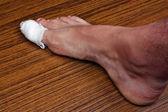 Bandaged toe — Stock Photo