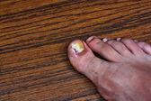 Swollen ingrown toe — Stock Photo