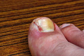 Ingrown toenail after surgery — 图库照片