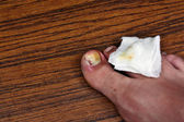 Ingrown toenail with dressing — 图库照片