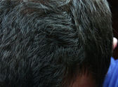 Graying hair — Stock Photo