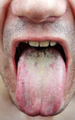 Disease tongue — Stock Photo