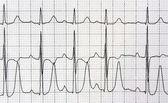 Heart analysis, electrocardiogram graph — Stock Photo