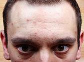 Akne finnar i ansiktet — Stockfoto