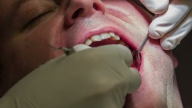 Dentist making jerky moves while mending patient's lower teeth — Stock Video