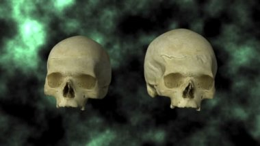 Hydrocephalic Human Skull Animation, top view on BG — Vídeo Stock