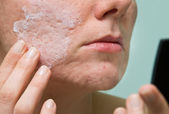 Acne treatment — Stock Photo