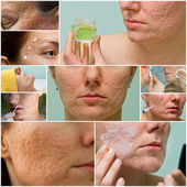 Acne scars treatment — Stock Photo