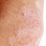 Psoriasis on elbow — Stock Photo #46461861
