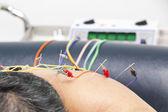 Acupuncture treatment — Stock Photo