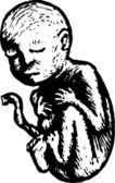 Houtsnede illustratie van pasgeboren baby in de leveringsruimte — Stockvector