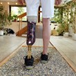 Male prosthesis wearer training to walk — Stock Photo