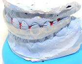 Dental splint — Stock Photo