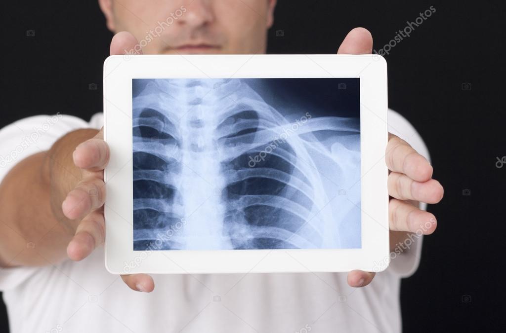 Скачать рентген на компьютер