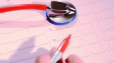 Electrocardiogram and doctor — Stock Video
