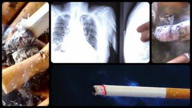 Danger of smoking series, two — Stock Video