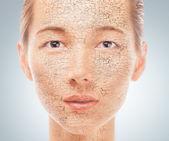 Portret młodej kobiety z suchą skórą — Zdjęcie stockowe