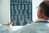 Senior doctor examines MRI image — Stock Photo